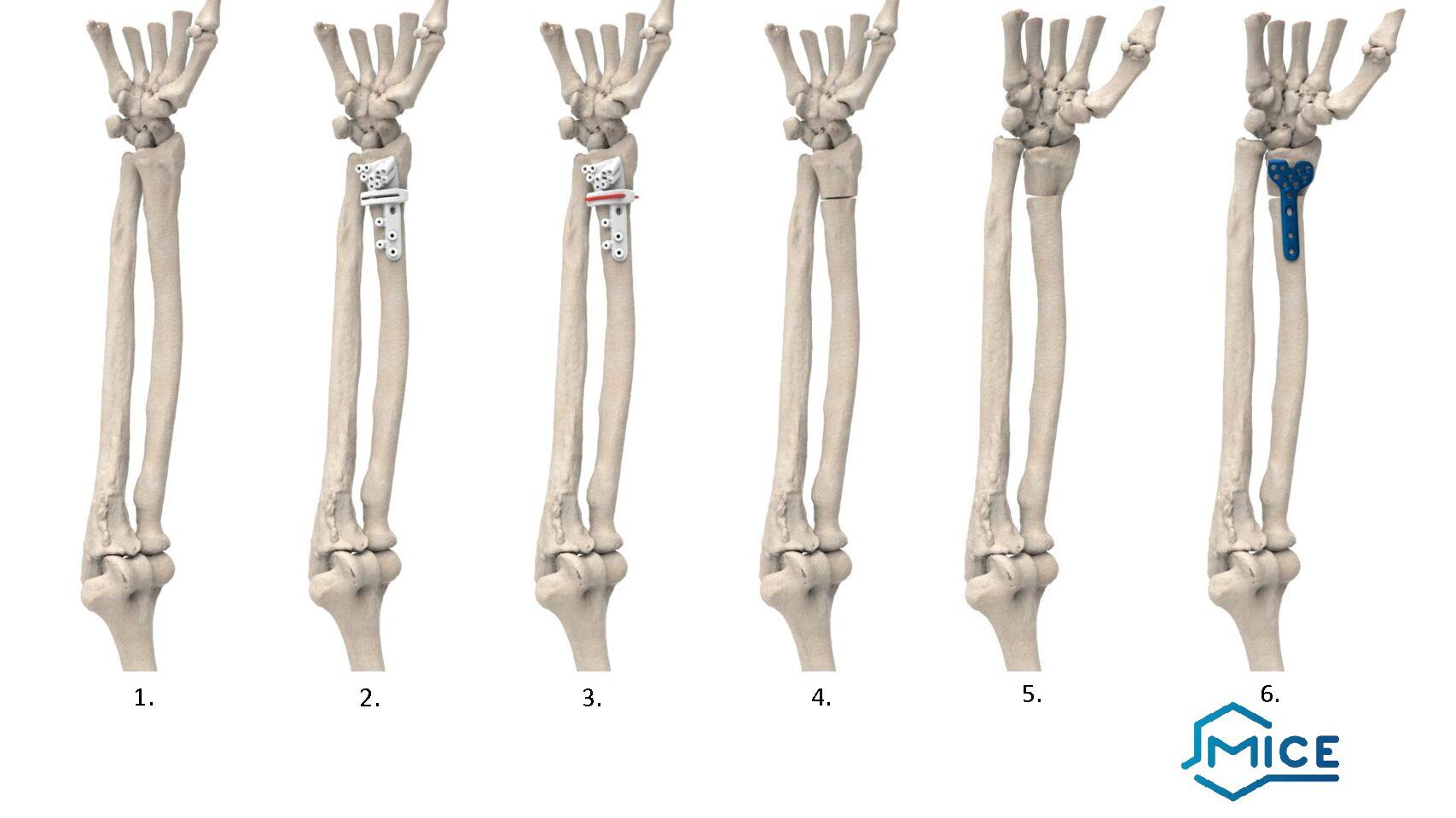3D spausdintuvas panaudotas rankos kaulo deformacijos gydymui